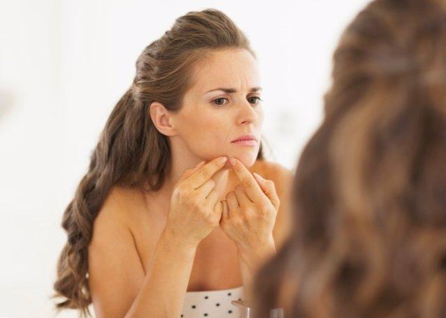 El 20% de las mujeres padece acné
